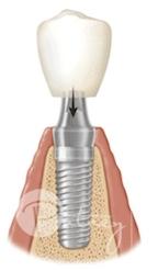 implant C