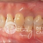 -Putney-Dental-Care