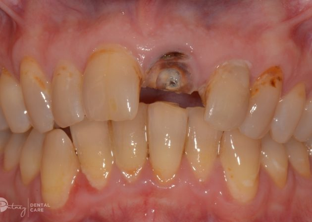 Avoid common winter dental conditions