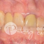 Putney-Dental-Care-smile-Putney-Dental-Care