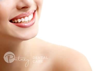 Teeth whitening - Putney Dental Care