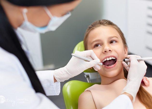 Amalgam Fillings  Repairs and Restore Teeth